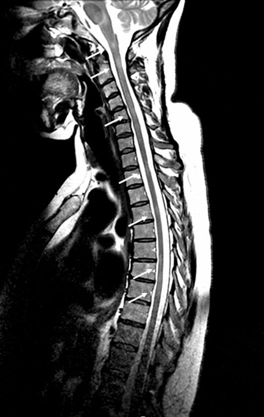 Sclérose en plaques   Collège des Enseignants de Neurologie