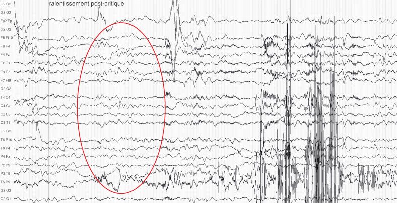 epilepsie 100 principes de base