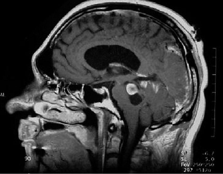 Tumeurs Intracraniennes College Des Enseignants De Neurologie